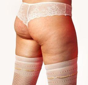 Un particolare che accomuna tutte le donne in età fertile: la cellulite.