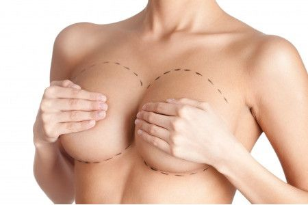 Ho scelto il dottor Rauso per rifarmi il seno: quando le scelte giuste ti cambiano la vita