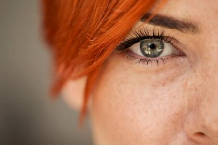 Eliminare le occhiaie con la medicina estetica? Oggi si può!