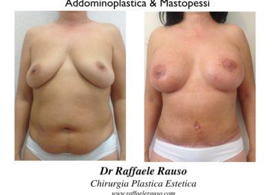 Addominoplastica E Mastopessi