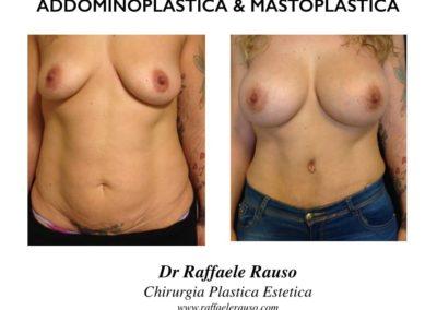 Addominoplastica Mastoplastica Prima Dopo
