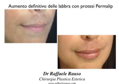 Labbra Aumento Volume Con Protesi