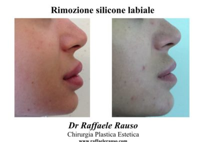 Rimozione Silicone Labbra Napoli
