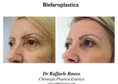 Blefaroplastica Inferiore Cantopessi