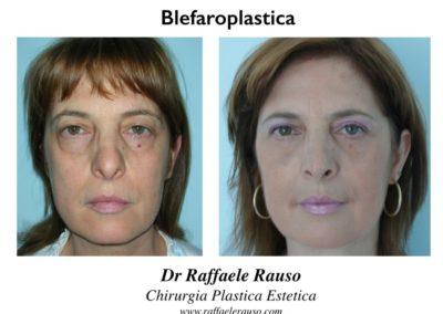 Blefaroplastica Prima Dopo