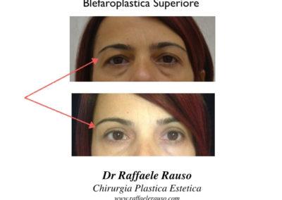 Blefaroplastica Superiore 1
