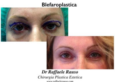 Blefaroplastica Superiore Cicatrice
