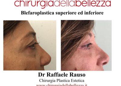 Blefaroplastica Superiore Inferiore Napoli 12 02 2016