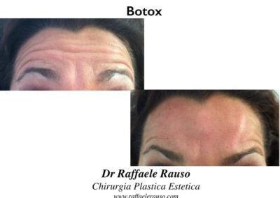 Botox Fronte Innalzamento Sopracciglia