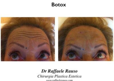 Botox Pre Post