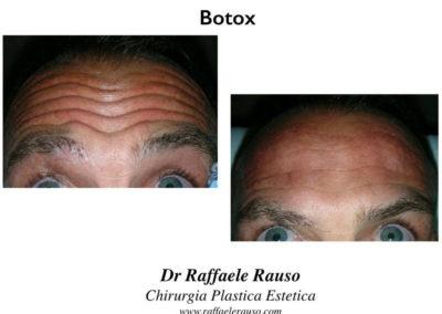 Botox Risultati