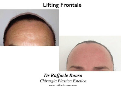 Lifting Frontale