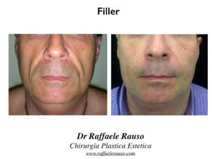 Filler Acido Ialuronico