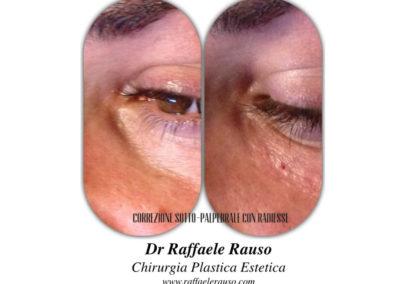 Filler Correzione Solco Lacrimale