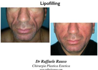 Lipofilling Facciale