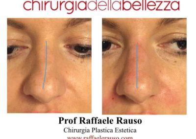 Rinofiller Deviazione Nasale