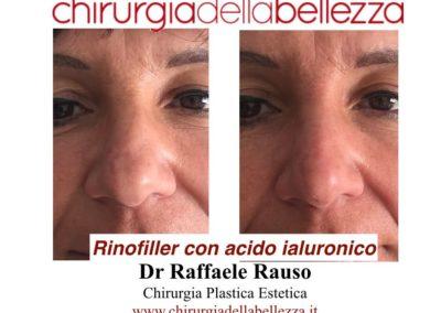 Rinofiller Napoli