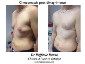 Ginecomastia Post Dimagrimento Laterale