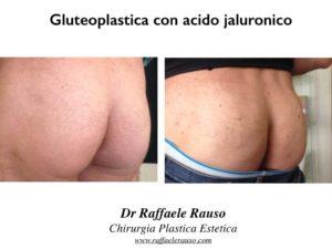 Gluteoplastica Non Chirurgica