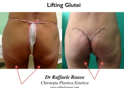 Lisfting Glutei Post Dimagrimento
