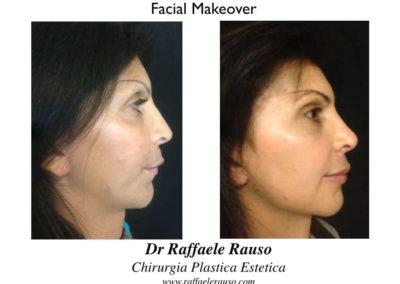 Facial Makeover Profilo