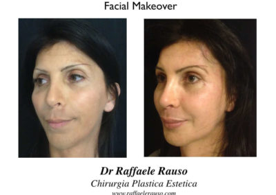 Facial Makeover Trequarti