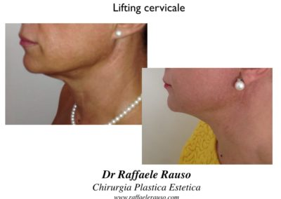 Lifting Cervicale