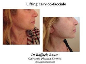Lifting Cervico Facciale Prima Dopo