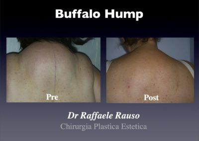 Lipo Buffalo Hump