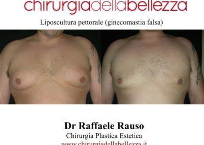 Liposcultura Pettorale Napoli