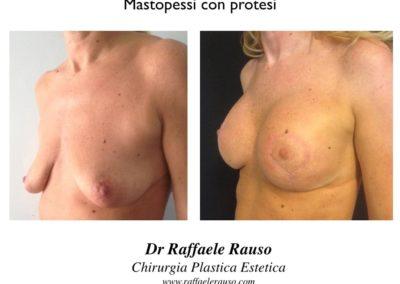 Intervento Mastopessi Con Protesi