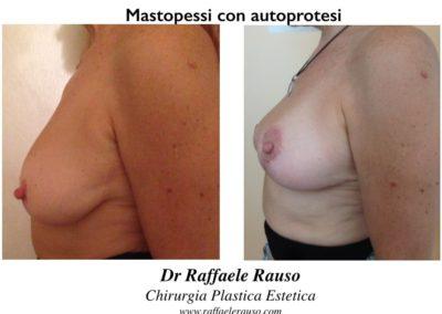 Mastopessi Con Autoprotesi