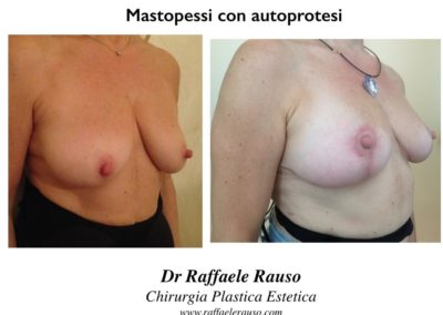 Mastopessi Con Autoprotesi Napoli