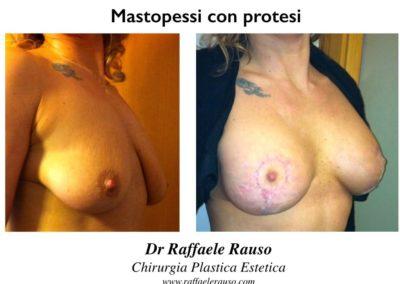 Mastopessi Protesi Tonda