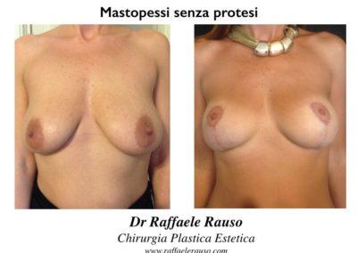 Mastopessi Senza Protesi