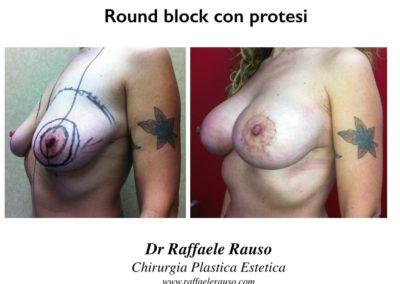 Round Block Mastopessi Cicatrice Periareolare