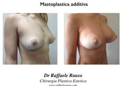 Intervento Chirurgia Plastica Aumento Seno Napoli