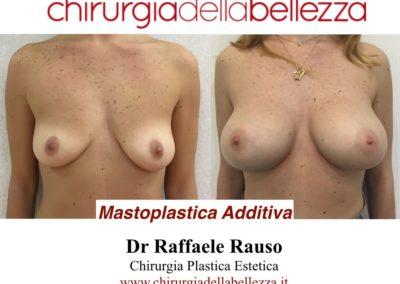 Mastoplastica Additiva Napoli
