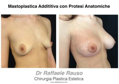 Mastoplastica Additiva Protesi Anatomiche