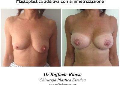 Mastoplastica Additiva Simmetrizzazione Napoli
