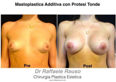 Mastoplastica Protesi Tonde