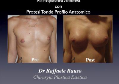 Protesi Tonde Profilo Anatomico Mastoplastica