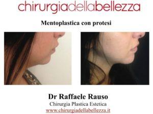 Mentoplastica Con Protesi Napoli
