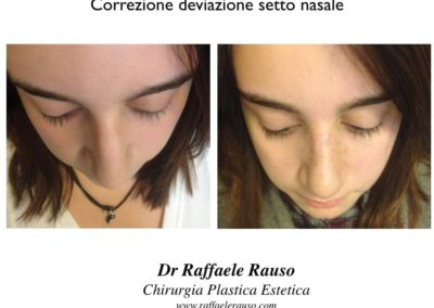 Correzione Deviane Setto Nasale