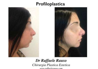 Profiloplastica Rinoplastica Protesi Mento