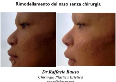 Rimodellamento Naso Non Chirurgico