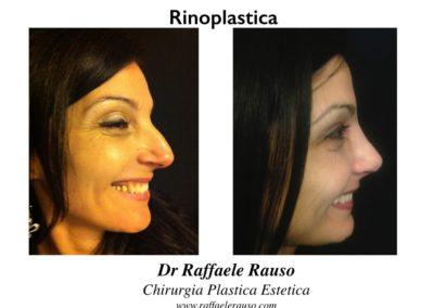 Rinoplastica Estetica Funzionale