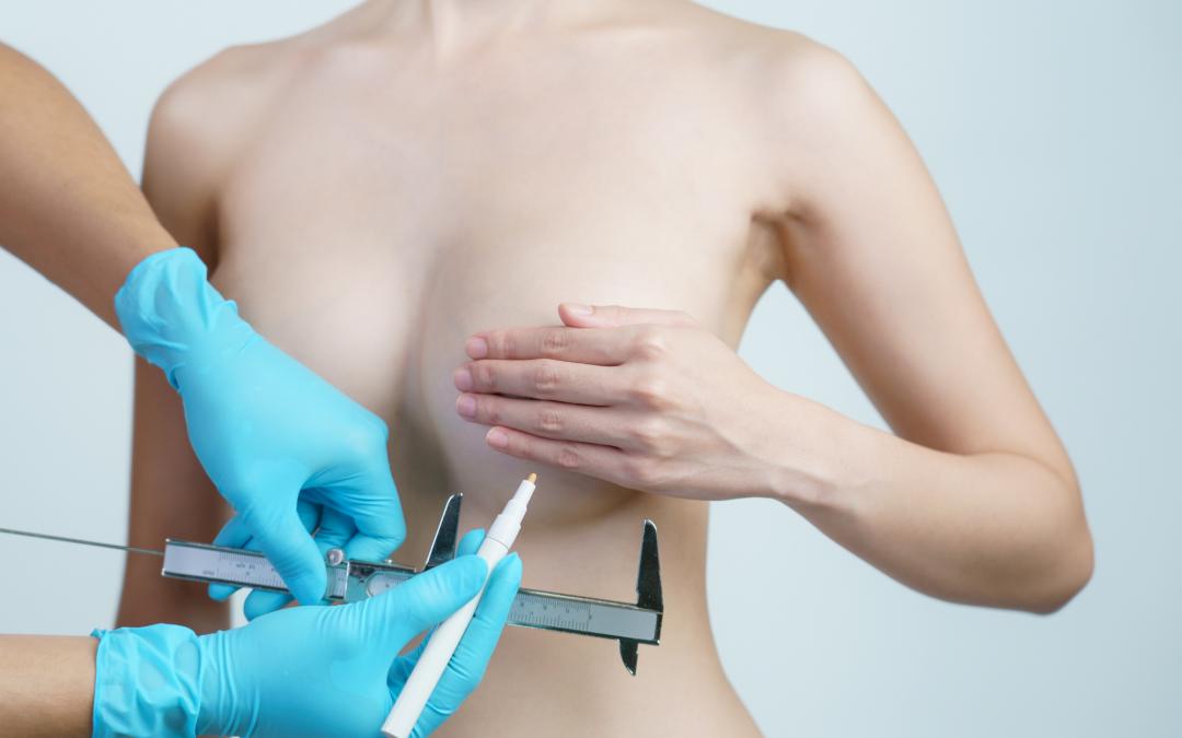 Ipertrofia mammaria: la chirurgia per dire addio ad un seno troppo grande